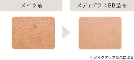 メイク前→メディプラスBB塗布後